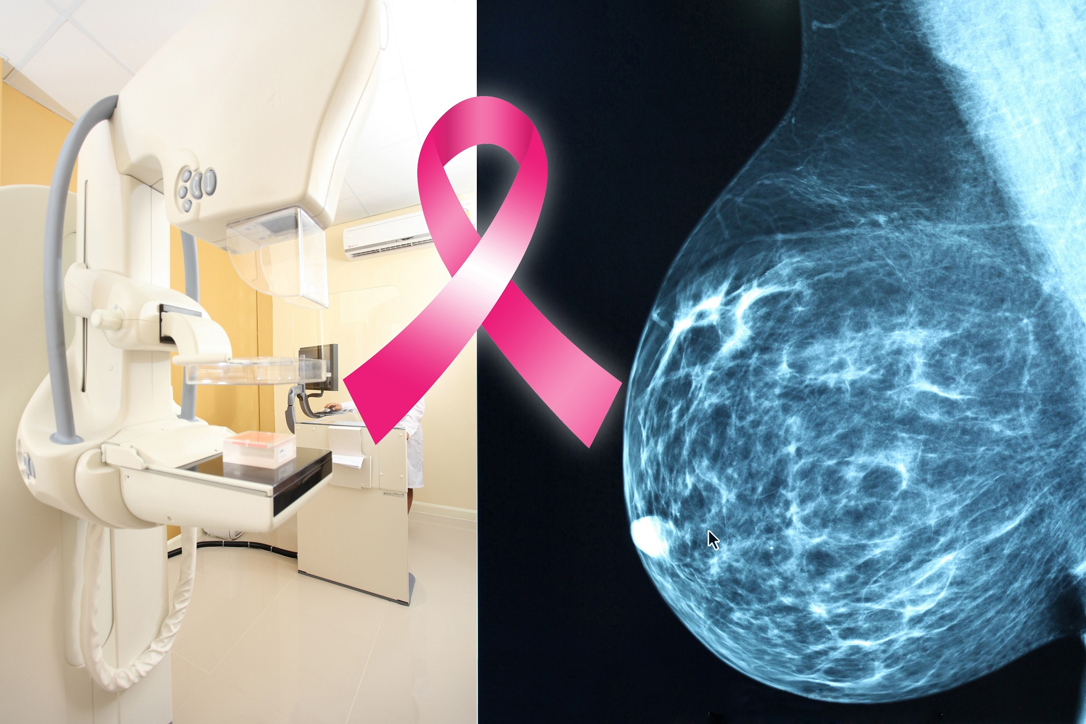 Professional radiology patient it includes special views in order to better evaluate the abnormality a diagnostic mammogram is read by the radiologist at the time of the exam xflitez Gallery